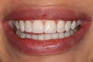 cosmetic composite bonding after